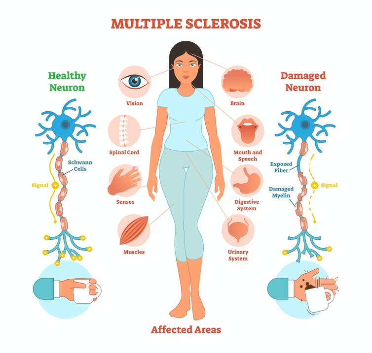 What causes multiple sclerosis? What we know, don't know and suspect
