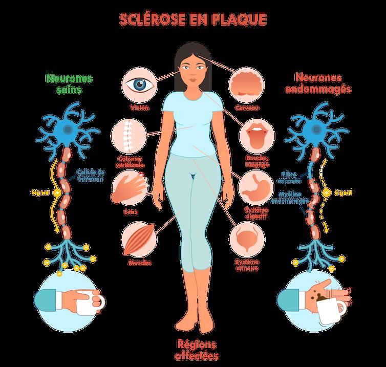 Illustration des régions du corps affectées par la sclérose en plaques