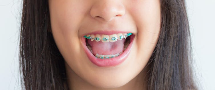 e146f1b5a Colourful additions to braces attracted children. Shutterstock