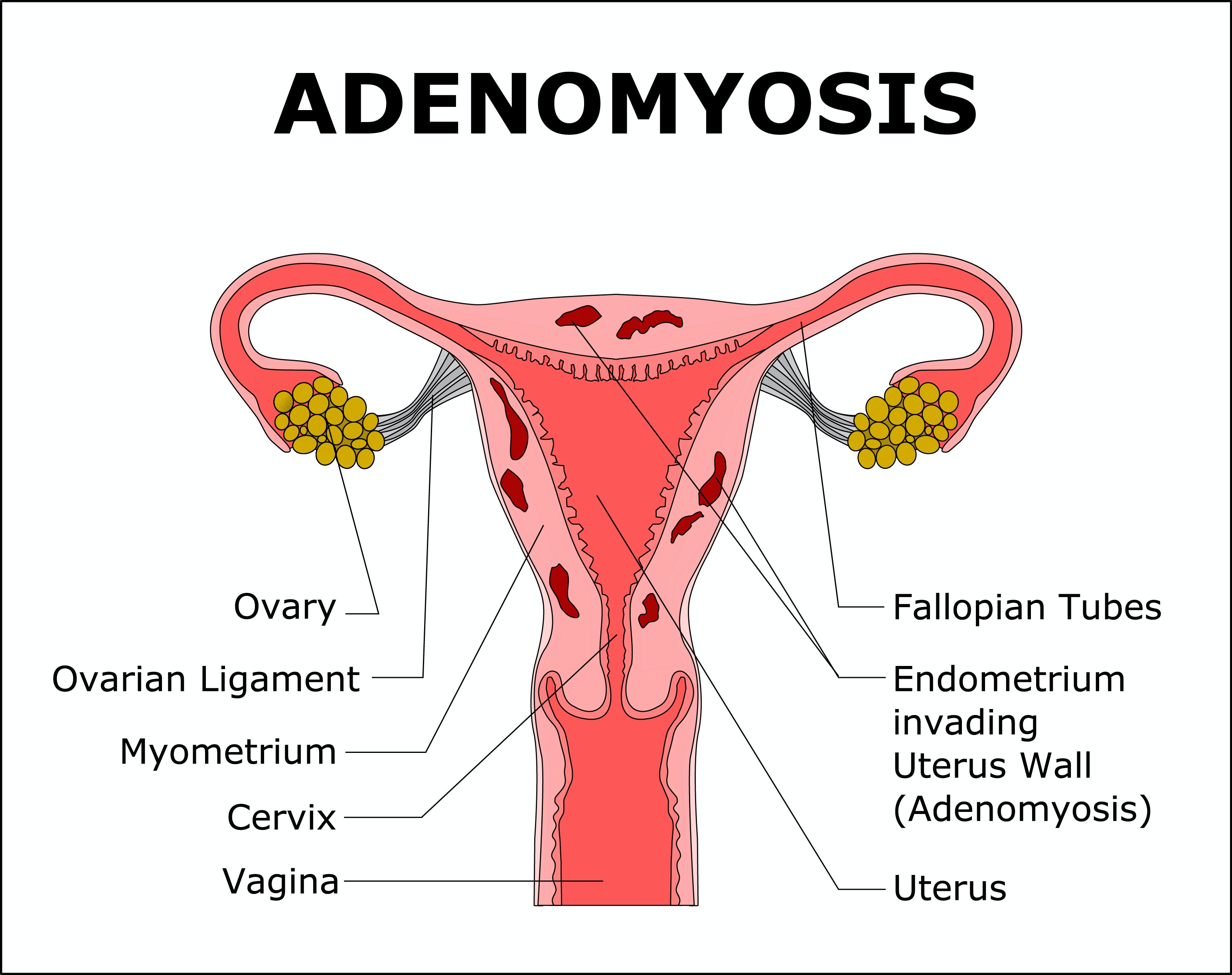 Pain inside of vagina