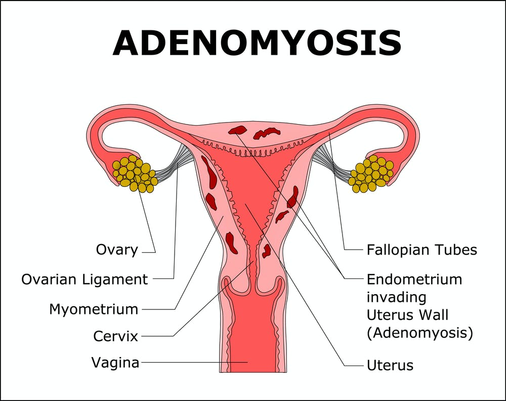 Adenomyosis causes pain, heavy periods and infertility but