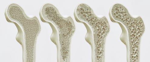 """Résultat de recherche d'images pour """"ostéoporose"""""""