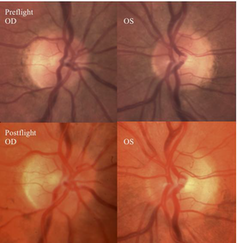 pre and post flight optic disc images