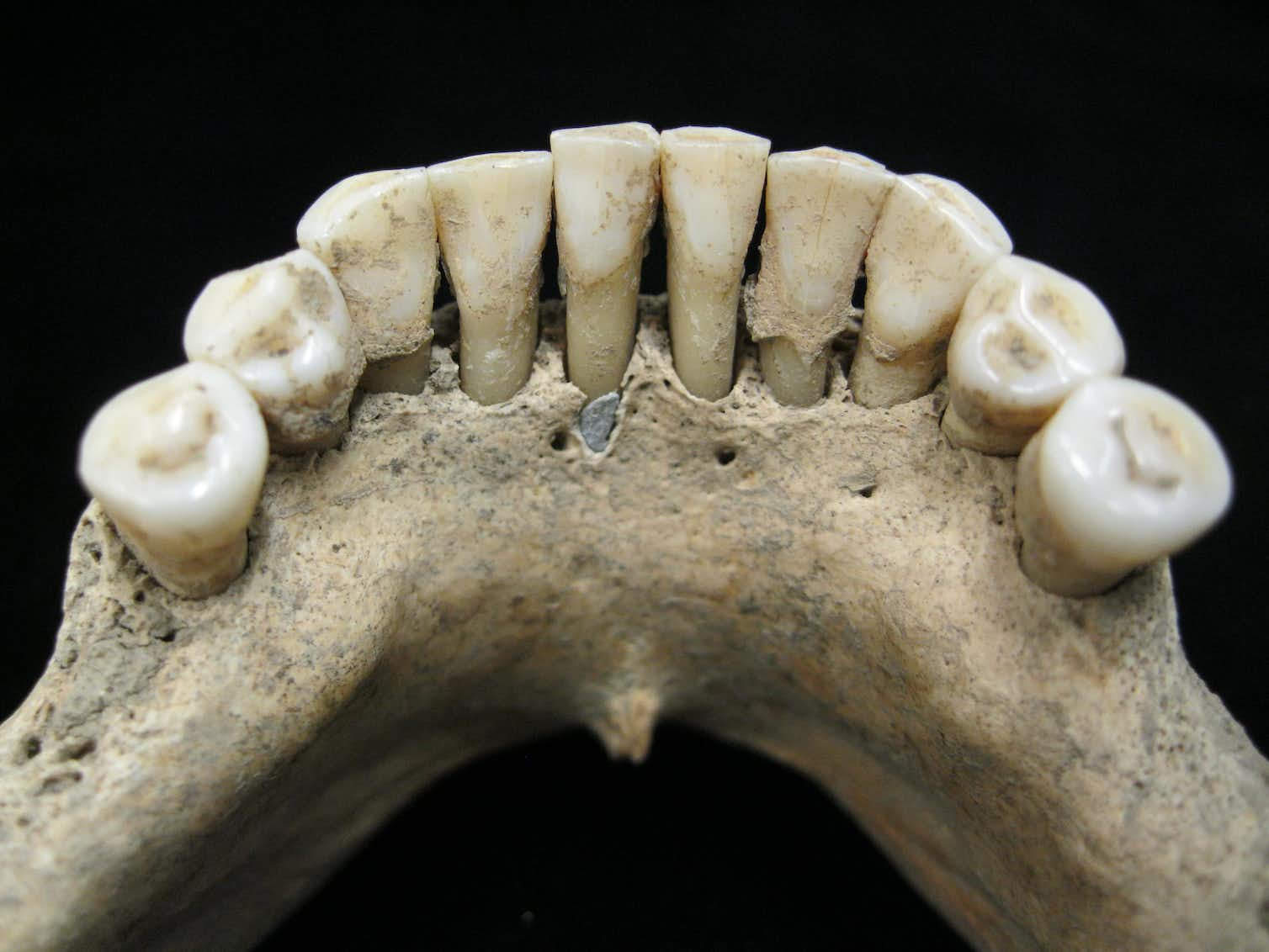 The tartar of the female individual known as B78 can be seen deposited on her teeth. Photo credit: Tina Warinner, Author provided