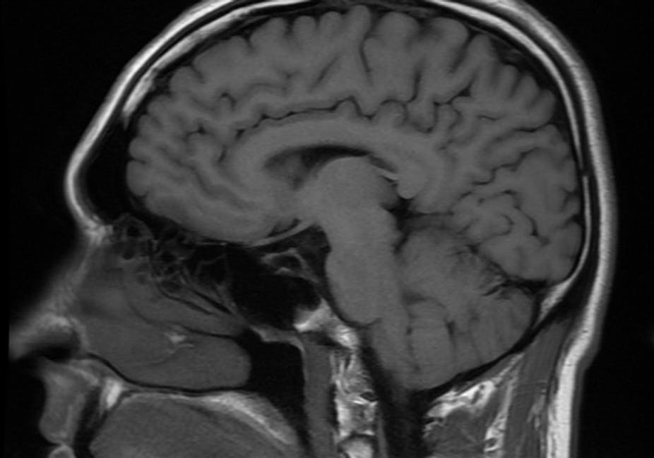 brain scan library will help us understand normal ageing