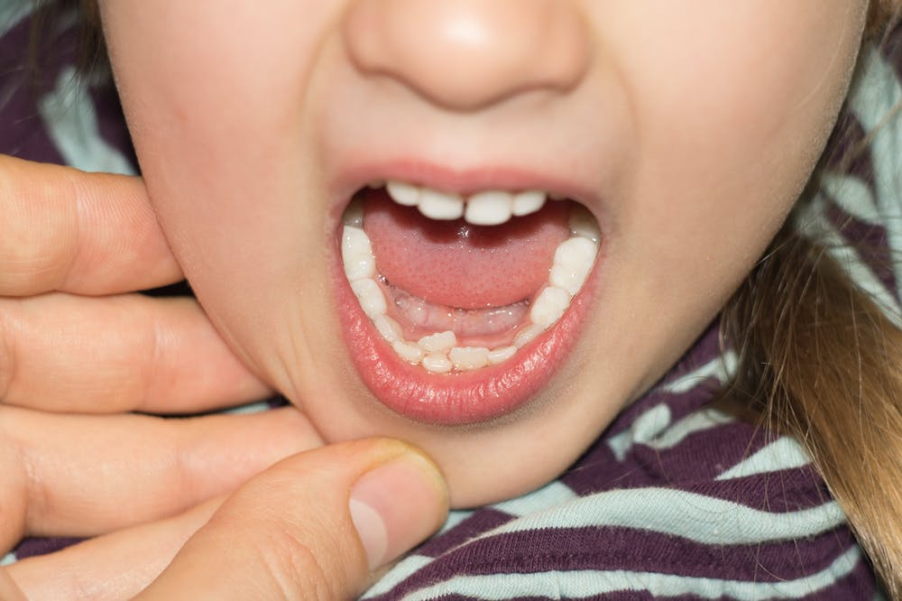 Curious Kids: why do we lose our baby teeth?