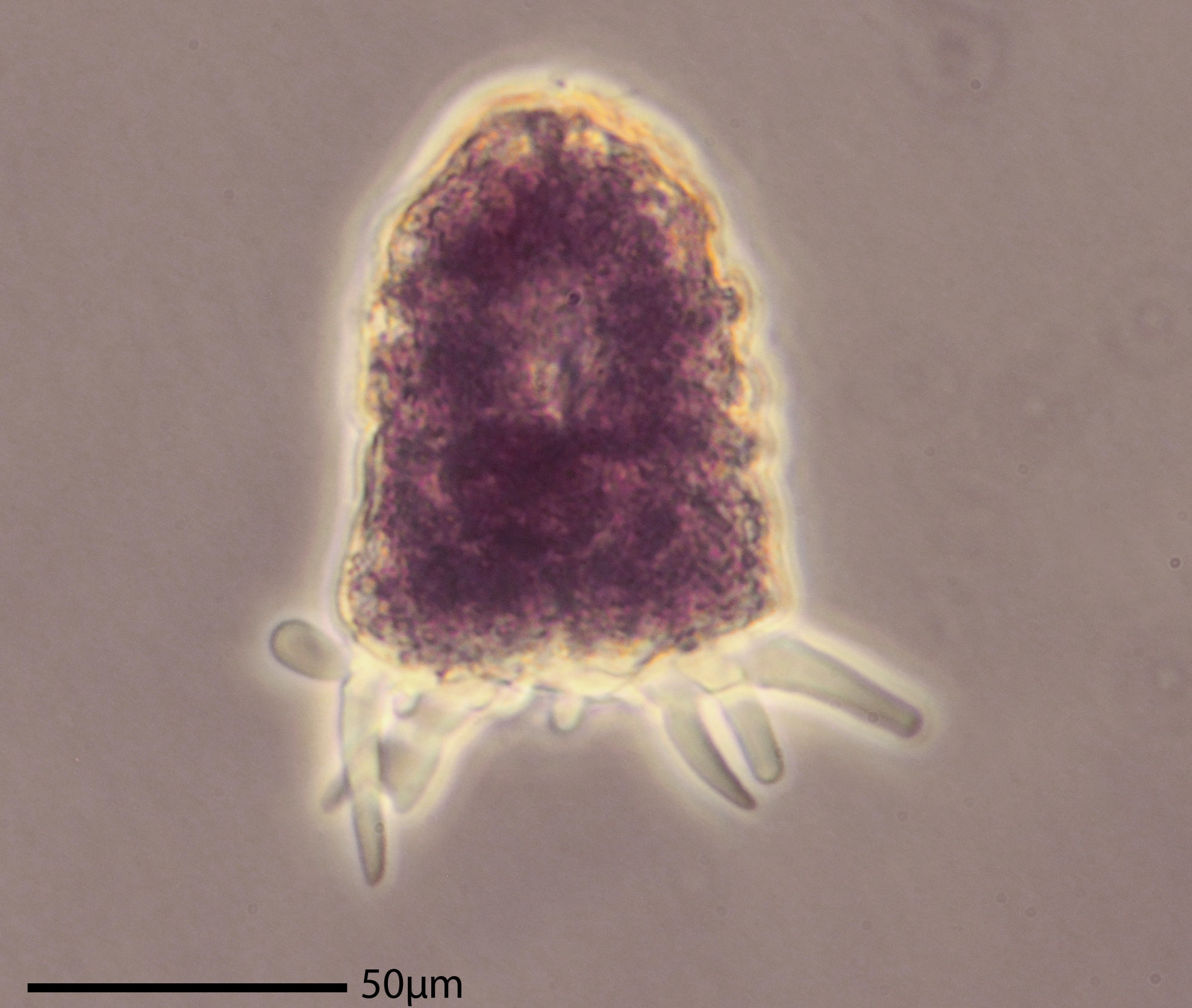 Amphizonella – identified in the authors' sidewalk sample – has a soft protective layer | Matthew W. Brown, CC BY-ND