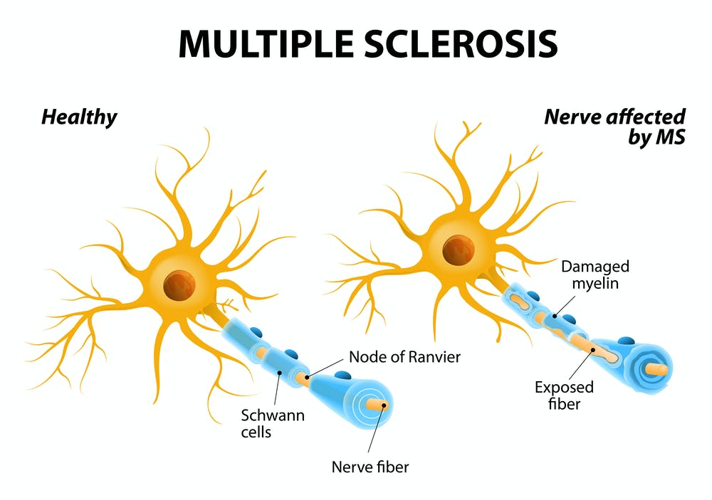 multiple sclerosis damages the myelin around nerve cells, disrupting  communications and changing a nerve's electric field   designua/shutterstock com