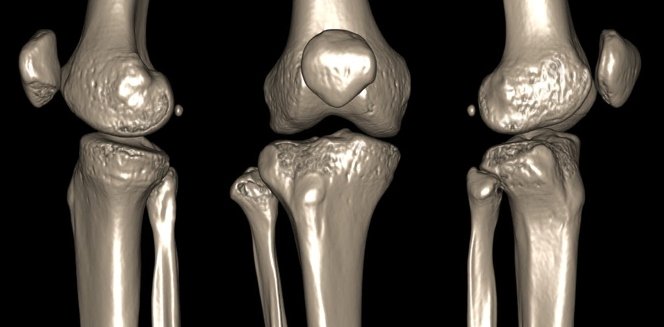 http://theconversation.com/what-makes-joints-pop-and-crack-and-is-it-a-sign-of-disease-113076