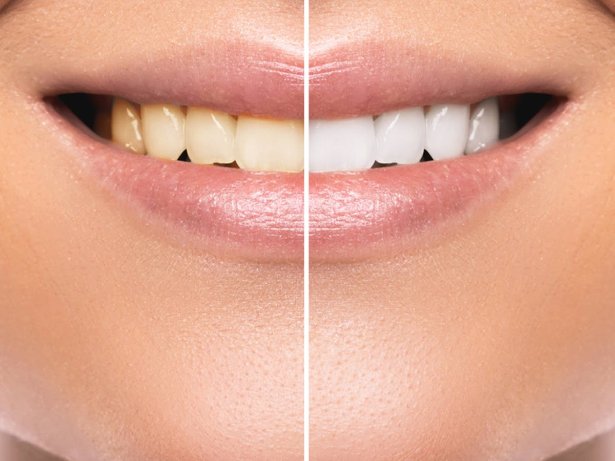 Tooth Whitening Don T Gamble With Your Teeth