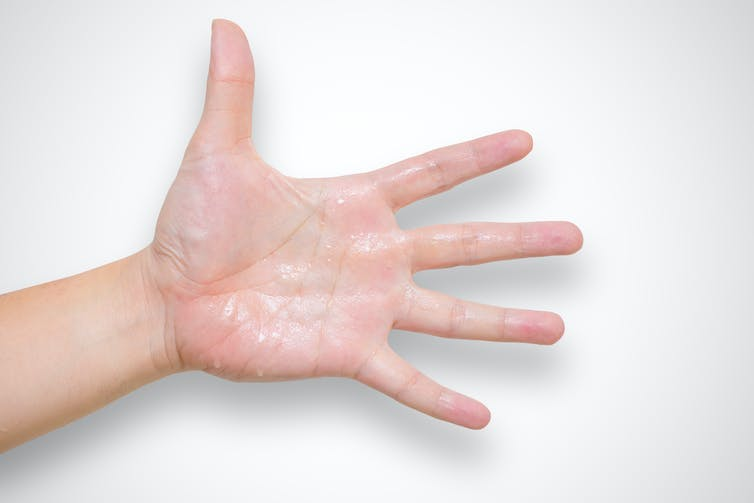 Hyperhidrosis: the excessive sweating condition that could