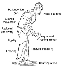 The movement symptoms of Parkinson's disease.
