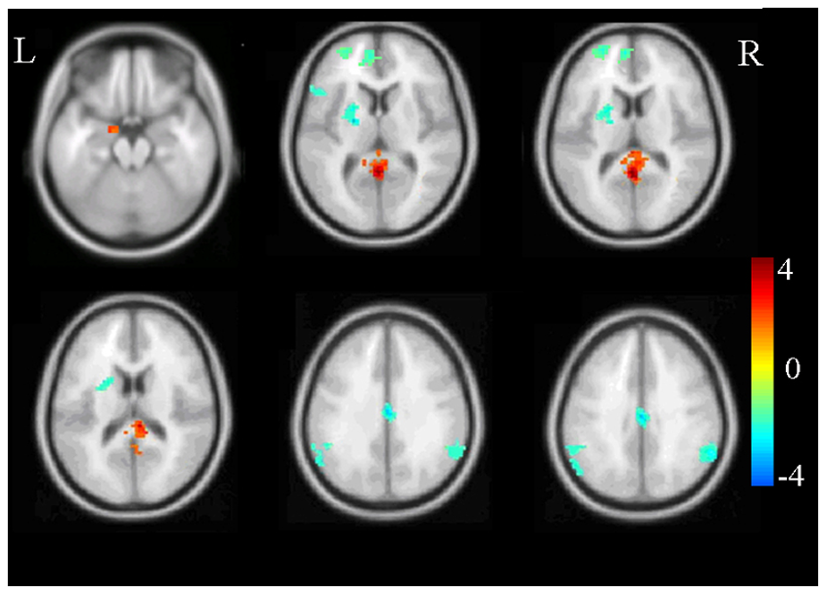 How Trauma Is Changing Childrens Brains >> Brain Scans Help Shed Light On The Ptsd Brain But They