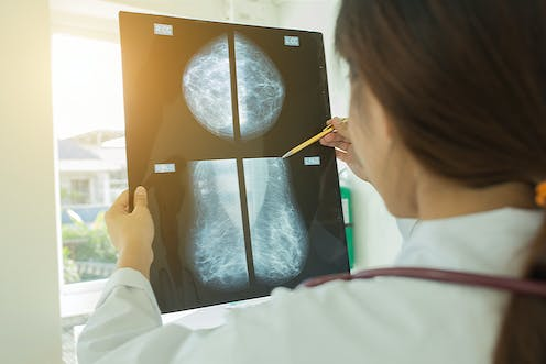 Mammography – News, Research and Analysis – The Conversation