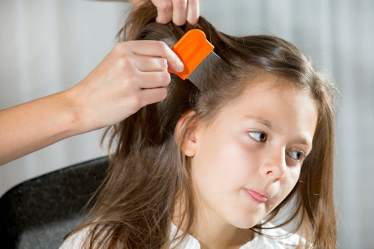 Curious Kids: what's the point of nits?!