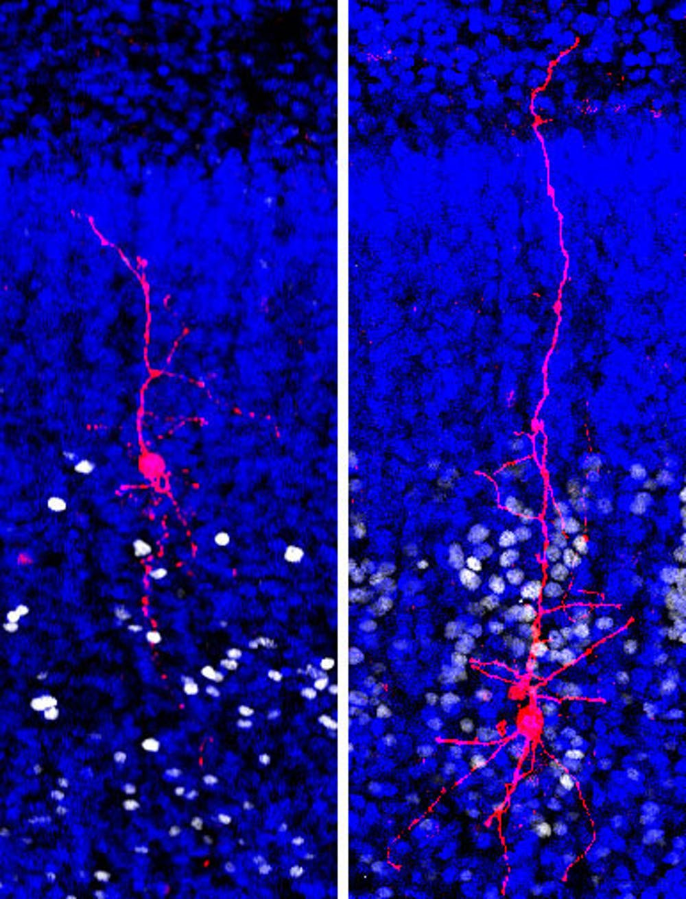 Research Identifies Complex Of Neurons >> New Autism Research On Single Neurons Suggests Signaling Problems In