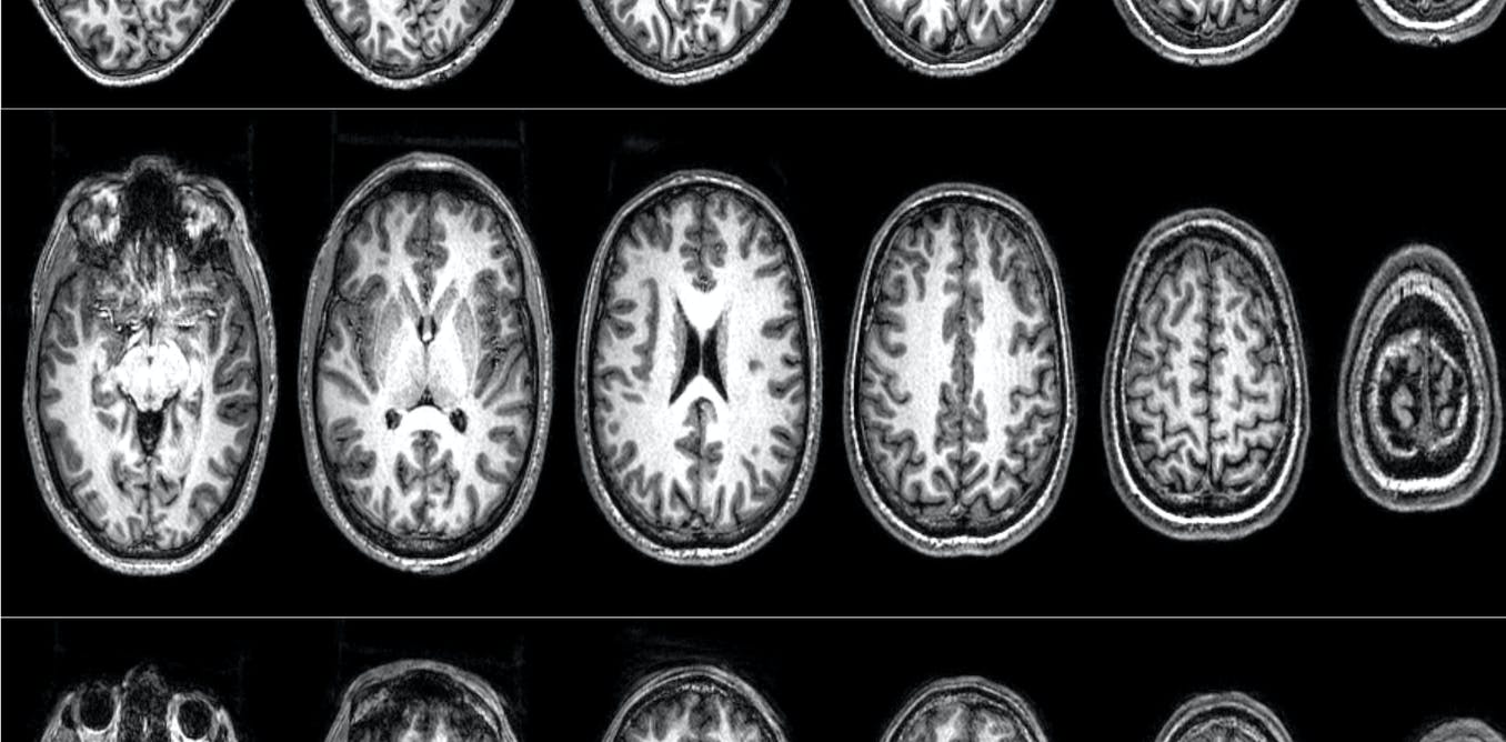The neuroscience of terrorism: how we convinced a group of radicals to let us scan their brains