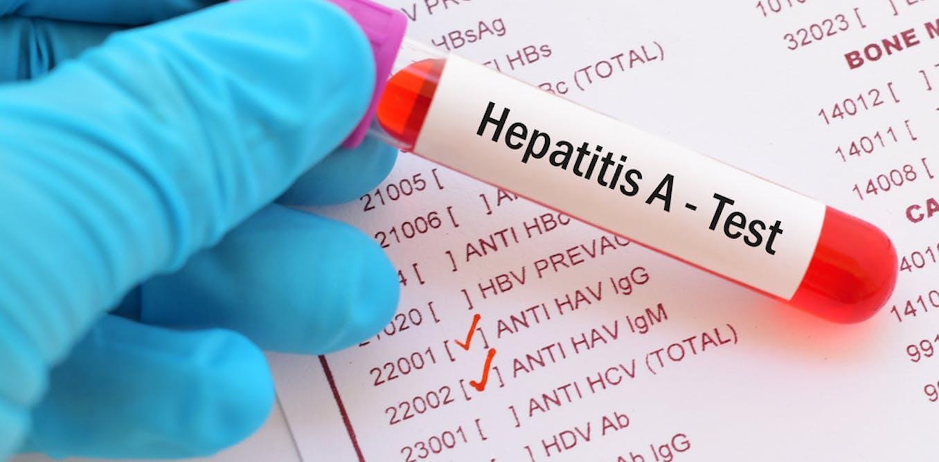 Penyebaran hepatitis A di Pacitan: apa pemicunya dan bagaimana hindari penularan?