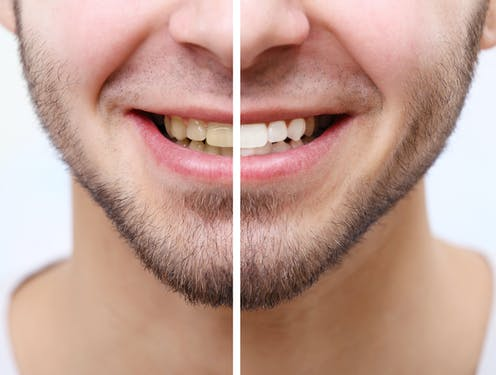 Is Whitening Bad For Teeth We Asked Five Experts