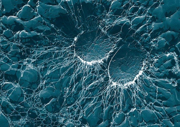 ¿Cómo llegan bacterias resistentes y residuos de antibióticos a los