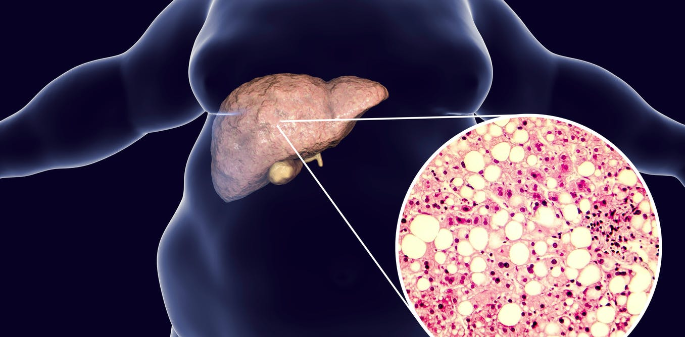 How to grow human mini-livers in the lab to help solve liver disease