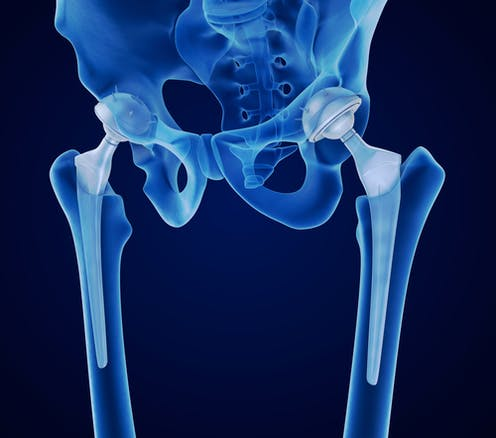 Why women are more likely to have dodgy hip implants or