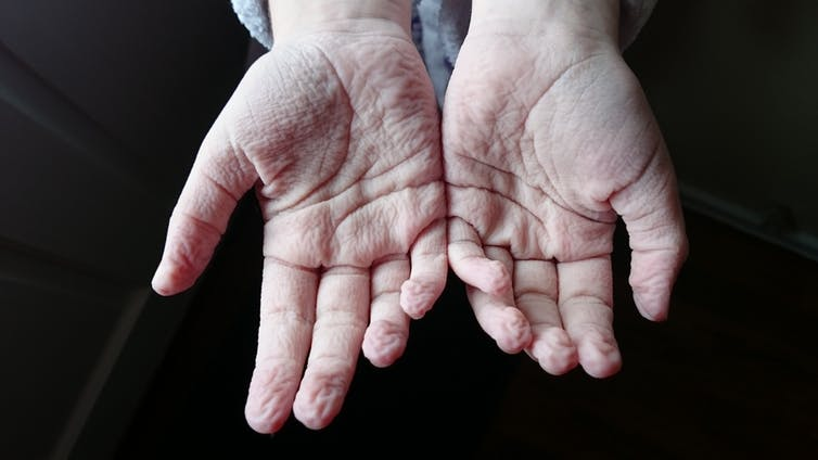 Curious Kids: why do our toes and fingers get wrinkly in the bath?