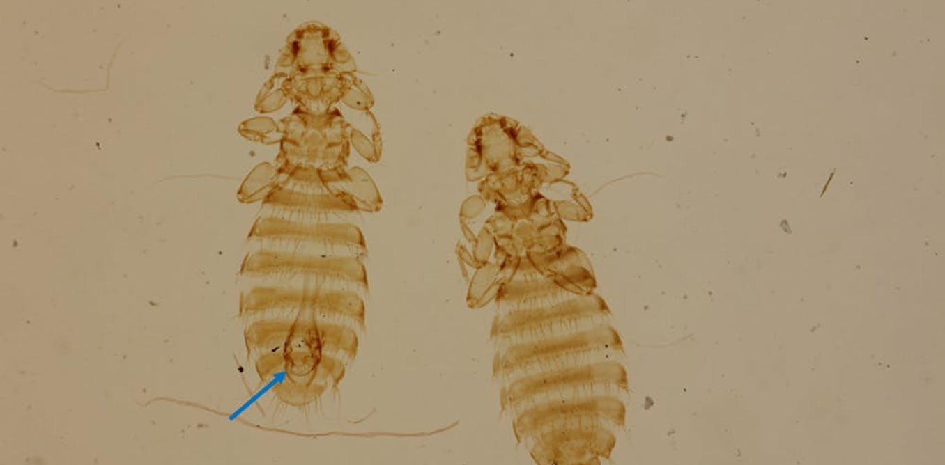How ancient seafarers and their dogs helped a humble louse conquer the world