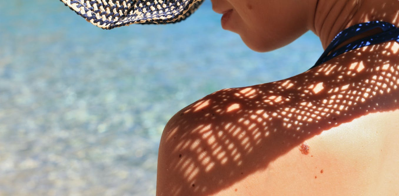 Skin cancer and sun damage: moles on the body largely determined by genetics, our new research suggests