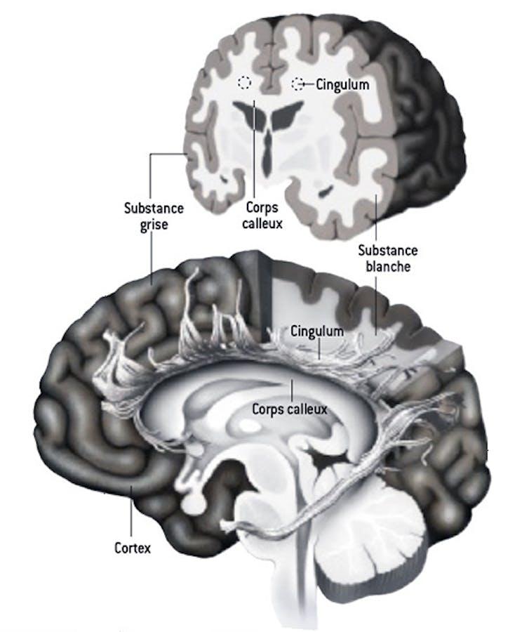 dans Neurosciences