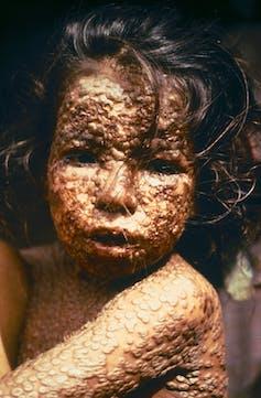 Todavía existen muestras de viruela en el mundo: ¿debemos