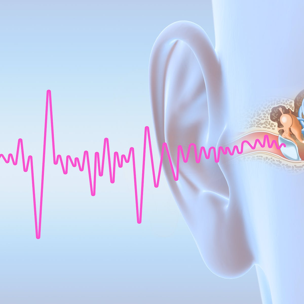 Tinnitus Why It S Still Such A Mystery To Science
