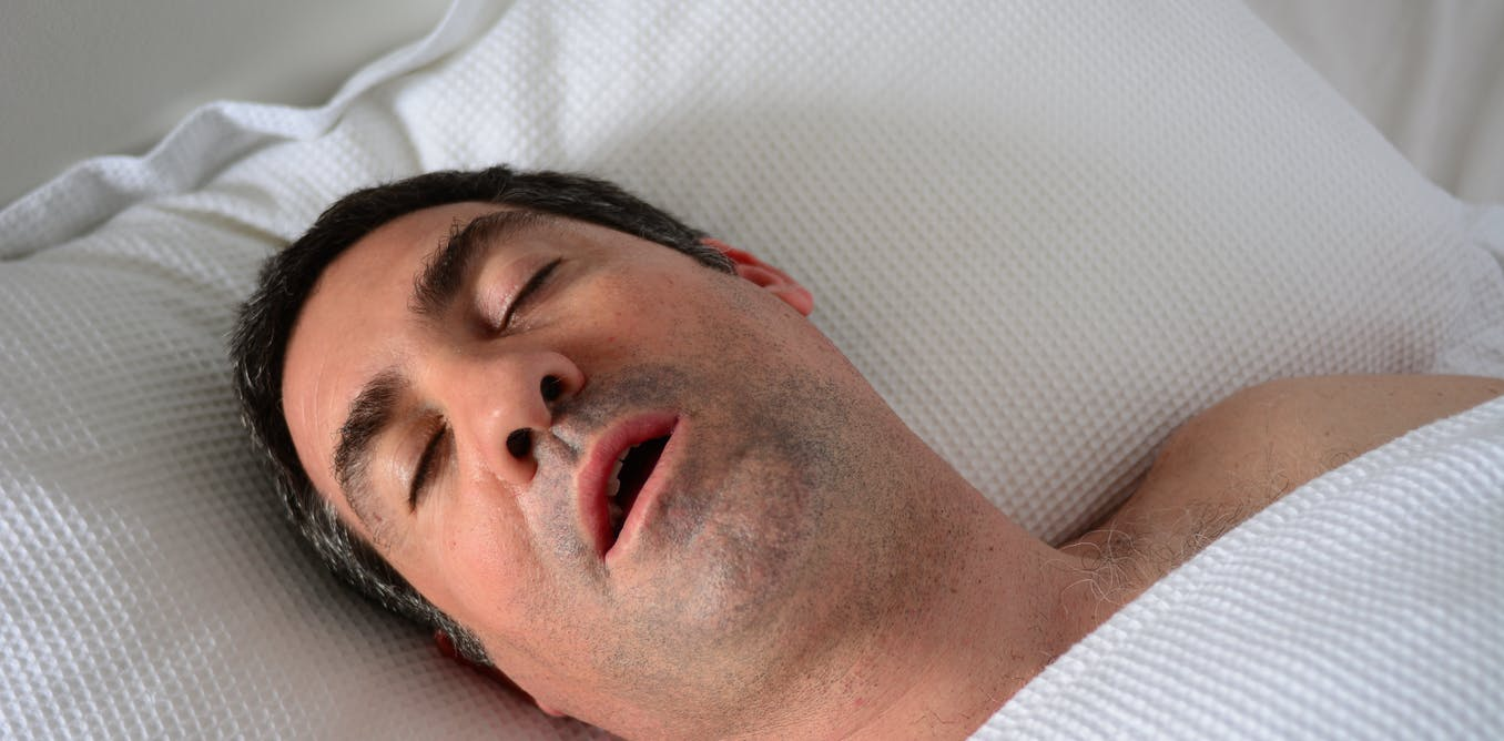 A good night's sleep, a long-sought dream for sleep apnea patients, may be in closer reach thumbnail