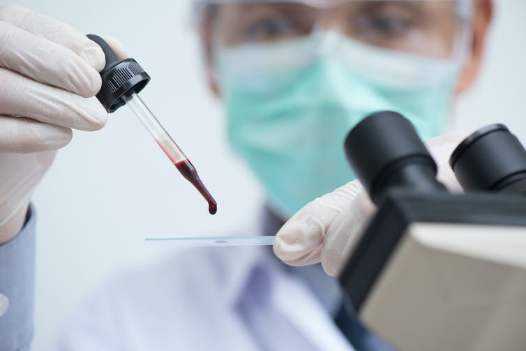 blood type,blood types,blood,blood transfusion,blood group,blood donation,blood groups,blood (biofluid),blood type (literature subject),what are blood types,abo blood group system,blood type diet,red blood cells,blood typing,abo blood group,abo blood type,what is a blood type,what is rh blood type,blood type personality,blood groups and blood types,blood cells,type a blood,type o blood,What are blood types?