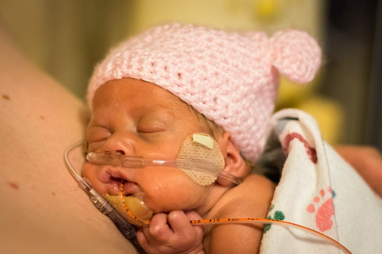 Stock photo of newborn baby in a hat, with breathing tubes in their nose and mouth