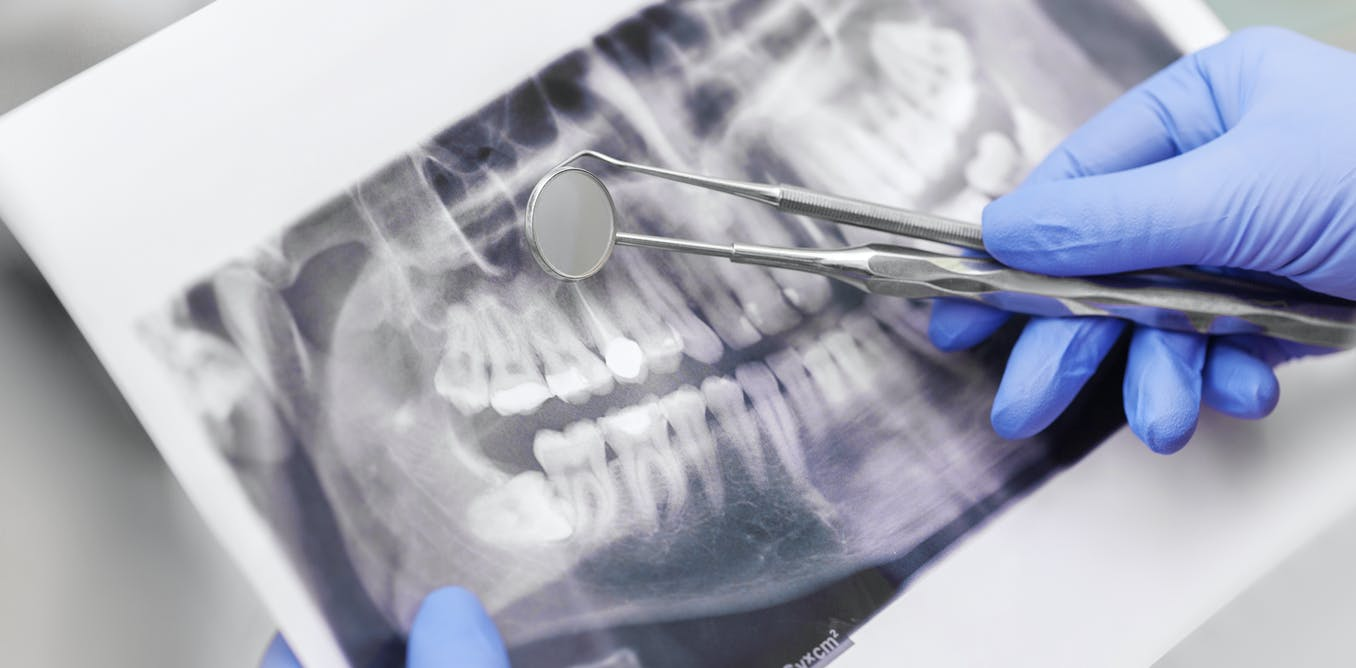 Dentists in South Africa aren't being taught genetics. Why they should