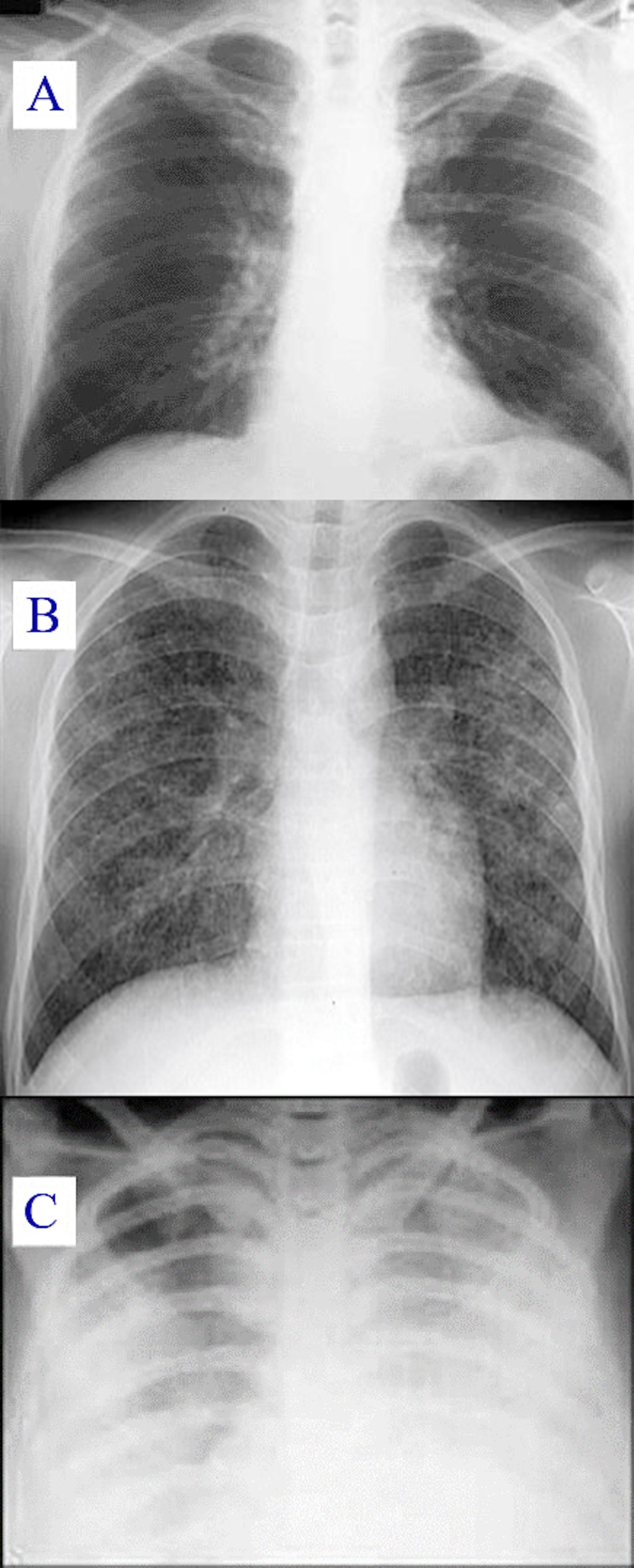 Infection à coronavirus: origine, symptômes, causes, traitement, précautions et autres détails