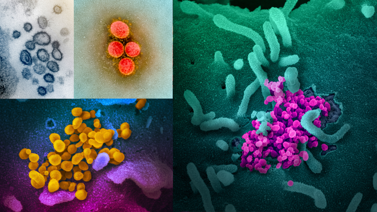 Scary red or icky green? We can't say what colour coronavirus is and dressing it up might feed fears