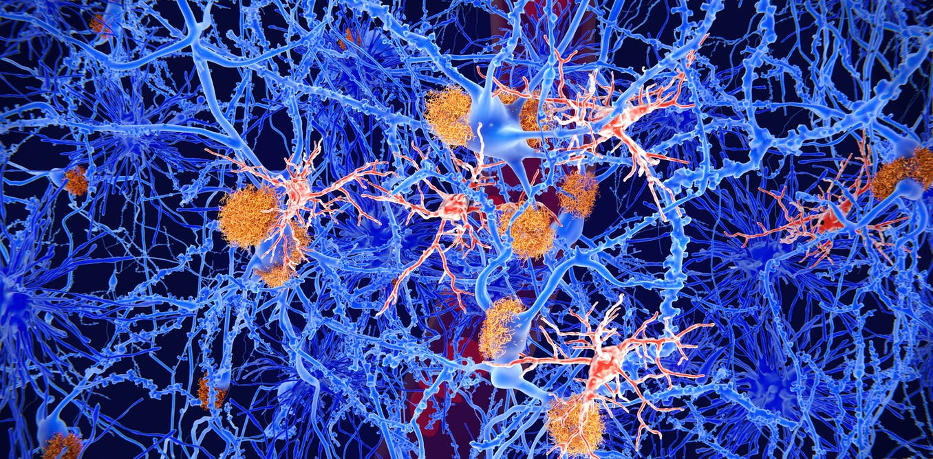 Microglia: the brain's 'immune cells' protect against diseases – but they can also cause them