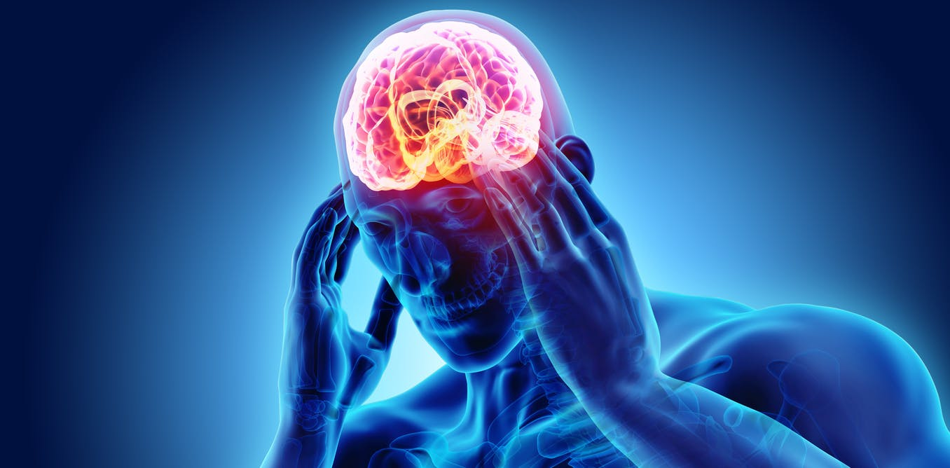Cluster headache is more than 'just a headache' – but this excruciating condition is often misdiagnosed