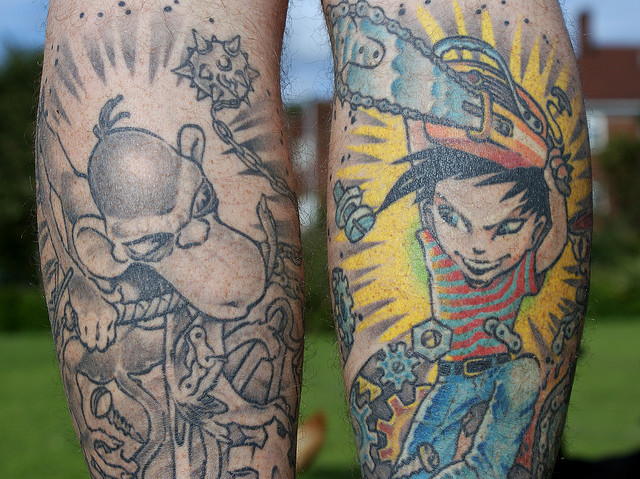 Explainer: how are tattoos removed?