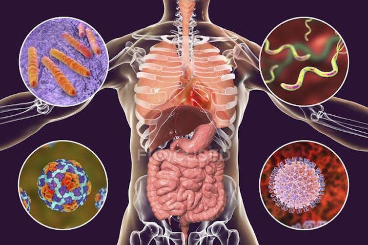 Las bacterias de nuestro sistema gastrointestinal, aliadas contra la  COVID-19