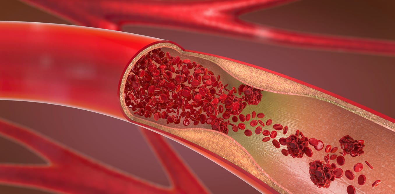 Repurposing Alzheimer's drugs could prevent blood vessel damage caused by type 2 diabetes and obesity – new research