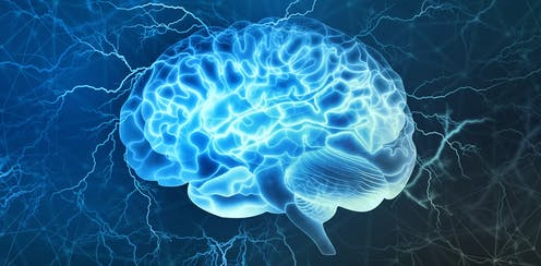 Brain surrounded by blue lightning