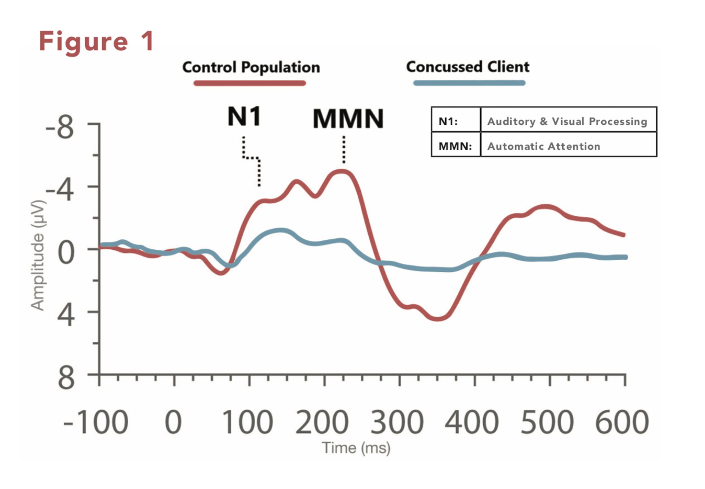 Line graph with time as x-axis and amplitude as y-axis, showing a red line for brain waves of a control patient and a blue line for a concussed patient. Red line has greater amplitude variation than blue, with N1 and MMN points much higher.