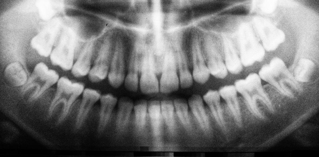 Cepillarse los dientes para mantener el cerebro libre de bacterias