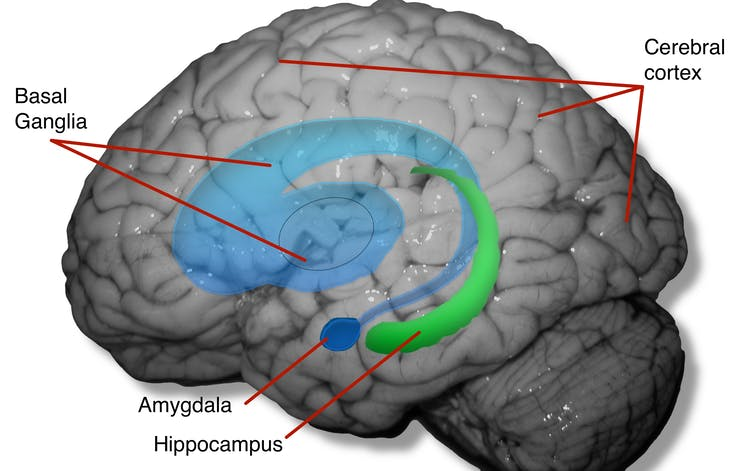 Image of brain showing areas affected by captivity