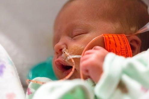 Sleeping baby in neonatal intensive care unit