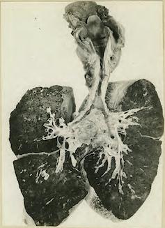 Fotografía de 1919 en la que se ven en blanco y negro unos pulmones que muestran una estenosis en la tráquea tras la inhalación de gas mostaza.