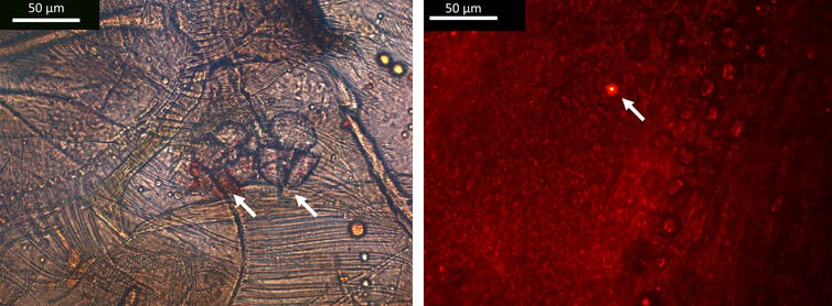 Gambar dari mikroskop